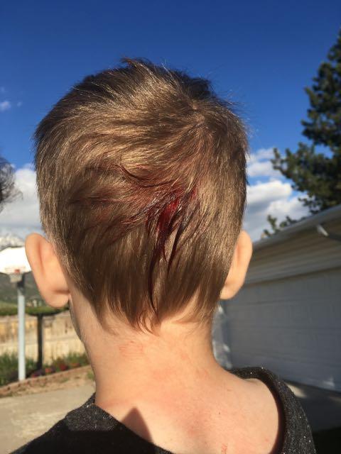 Lucas's Bloody Head
