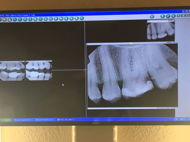 Dental Pains