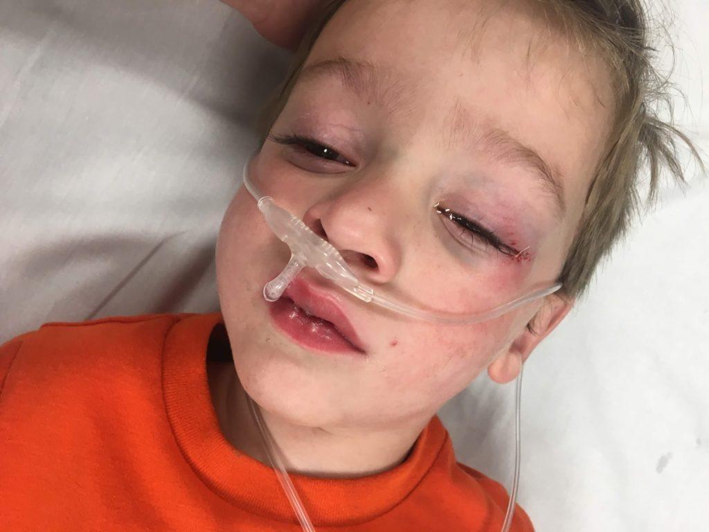 Lucas Got Stitches, Again