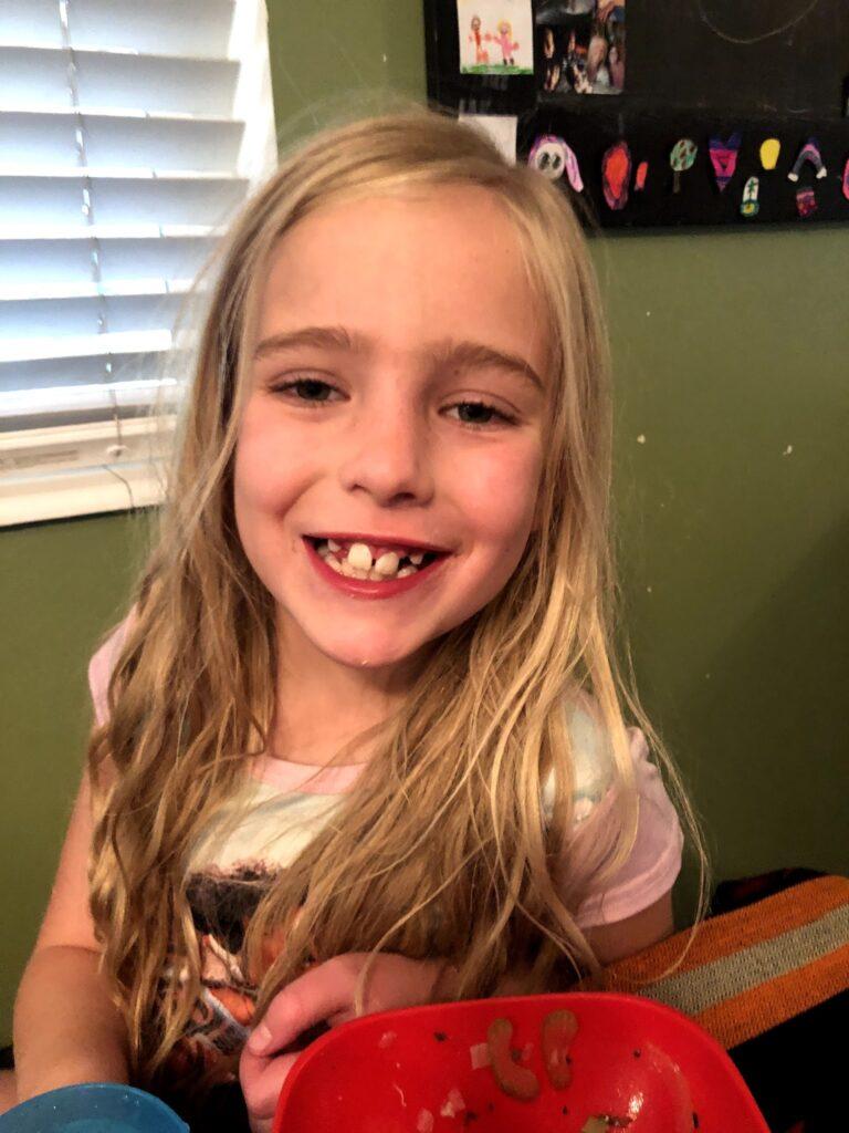 Mirah's Shark Teeth, Orotho and Teeth Pulling